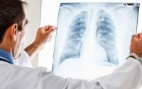 Украина - в лидерах Европы по количеству больных туберкулезом