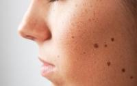 Лучше врача: медики научили смартфон диагностировать рак кожи (ВИДЕО)