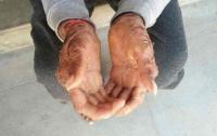 Девочка-змея сбрасывает кожу каждые полтора месяца