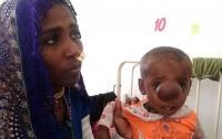Ребенок родился с мозговой грыжей на лице