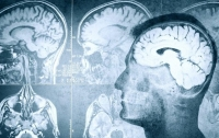 Человека можно вернуть к жизни в течение 5 минут после смерти, - ученые