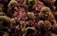 Украинские ученые обнаружили новые опасные мутации коронавируса