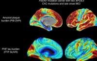 Редкая мутация спасла женщину от наследственной болезни Альцгеймера