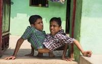 Сиамские близнецы отказались от разделения и не пожалели