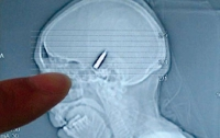 Итальянец вычихнул пулю, застрявшую у него в голове