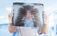 Херсонцы массово болеют пневмонией
