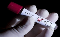 Кардиологи: люди с ВИЧ страдают от инфарктов в 1,5–2 раза чаще