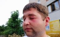 Мужчина побил журналистов, которые хотели побеседовать с кандидатом в депутаты