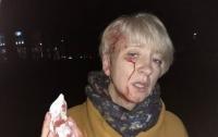 Смывы крови, окурки и шприц: началось процессуальное руководство по факту нападения на судью