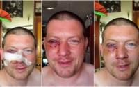 Пять неадекватных таксистов избили прохожего, полиция приехать не удосужилась