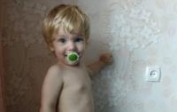 В Запорожской области на 2-летнего ребенка упала кастрюля с кипятком
