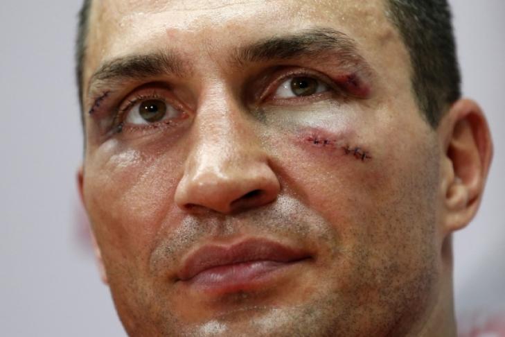 Менеджер Кличко сообщил, когда пройдет повторный бой с Фьюри