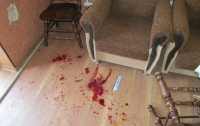 На Донетчине мужчина расстрелял знакомых, есть раненые