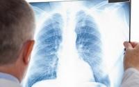 Ежегодно 4 тысячи украинцев умирают от туберкулеза