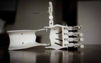 Ученые занялись разработкой технологии печати суставов-трансплантатов