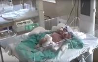 В Индии родился двухголовый младенец с тремя руками (видео)