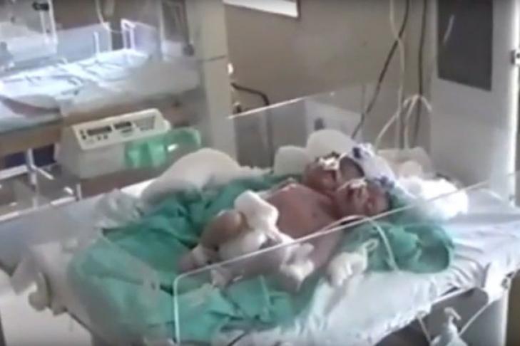 ВИндии девушка родила ребенка с 2-мя головами итремя руками