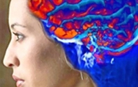 Микроинсульты провоцируют болезнь Паркинсона