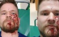В Ингушетии избили журналистов и сожгли их автомобиль