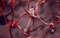 Найден безопасный и эффективный способ лечения болезни Альцгеймера
