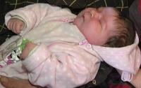 В Запорожье родился ребенок-гигант