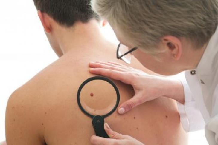 Учёные: рак кожи и количество родинок не взаимосвязаны