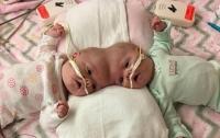 Хирурги из США успешно разделили сиамских близнецов с общей головой