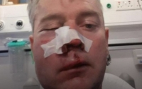 В Ирландии футболисты после матча жестоко избили судью