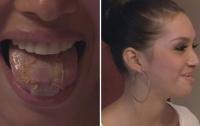 Девушка пришила себе пластик на язык, чтобы похудеть
