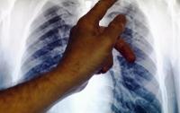 Винница: в семье туберкулезников от недуга умер двухлетний мальчик