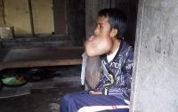 У филиппинца во рту образовалась опухоль размером с голову