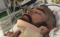 Мужчина на лету спас выпавшего с балкона сына и получил тяжелые травмы