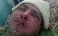 На Одесщине избили военнослужащего АТО