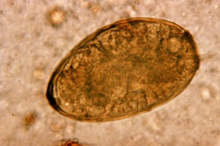 Ученые: Впечени 375-летней мумии найдены паразиты