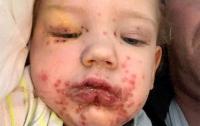 Невинный поцелуй изуродовал ребенка