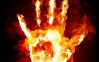 Недетские шалости: В Днепре ребенка облили бензином и подожгли