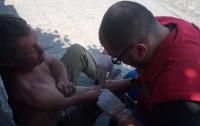 Осторожно, дети: Под Харьковом подростки сильно избили приезжего