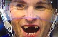 Знаменитый хоккеист попросил у Санта-Клауса новые зубы