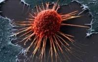 На теле человека обнаружены убийцы раковых клеток