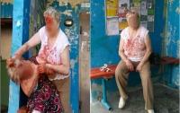 Две пенсионерки устроили кровавую драку в Житомире
