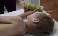 Днепрянка пытала приемного сына, ребенок попал в реанимацию