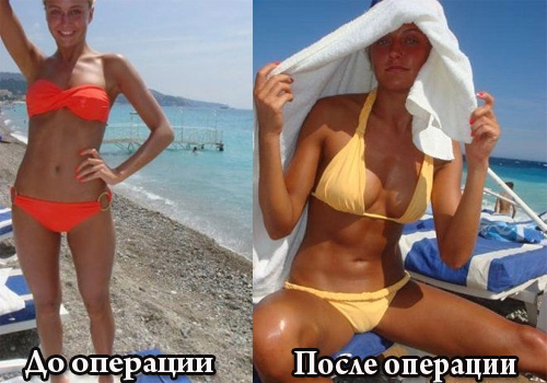 kak-poyavlyaetsya-plod-rebenka-vo-vremya-seksashema