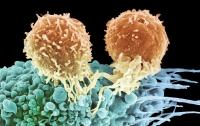 Врачи разработали новый уникальный способ лечения рака