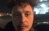 Человека избили в центре Киева из любви к России