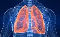 Названы симптомы по которым можно определить рак легких