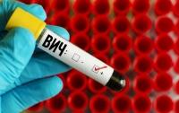 Ученые обнаружили вирус, который помогает бороться с ВИЧ