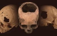 Хирурги инков оказались эффективнее врачей ХІХ века