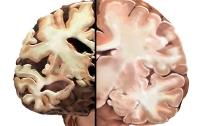 Опасную болезнь можно диагностировать за несколько десятков лет до ее появления