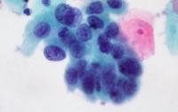 Вчені знайшли новий дієвий спосіб подолати небезпечний рак