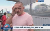 Разбойное нападение на Житомирской трассе под Киевом